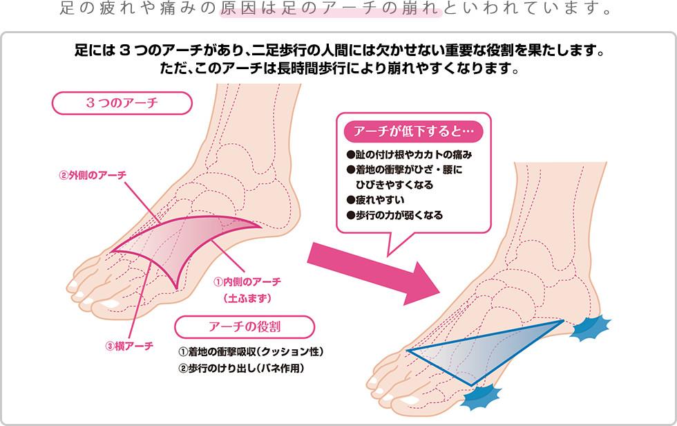 足の疲れや痛みの原因は足のアーチの崩れといわれています。